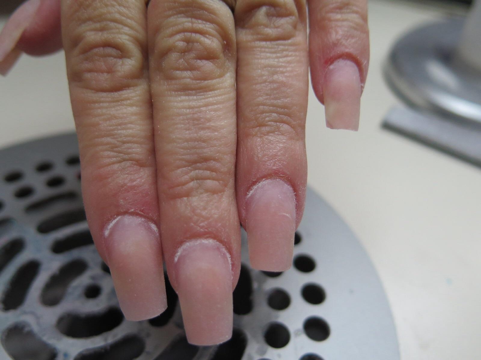 photo de type cancer la peau fZqnGnwD